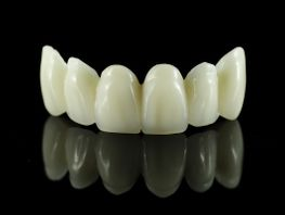 Zirconia/porcelain Crowns